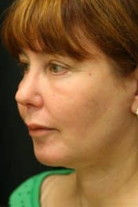 Face-Procedure-Before-Right-Side-View