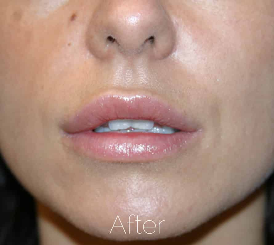 Lip filler after photo