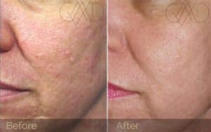 A Before and After Photo of a female patient that has undergone a couple micro-needling with prp treatments